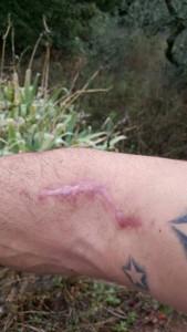 Maintenant la magnifique cicatrice… rps20151003_143205