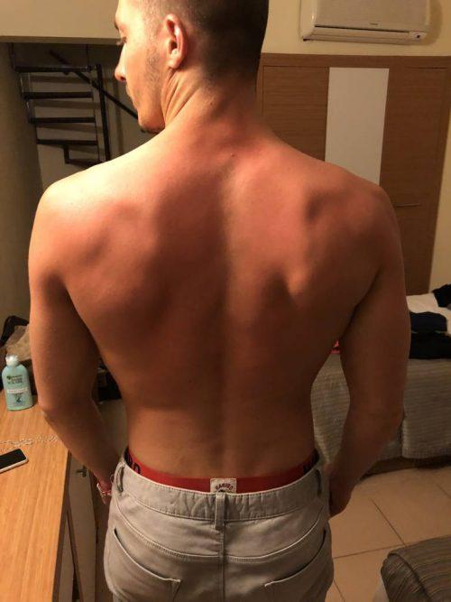 Mai 2018 – en vacances, après une semaine sans muscu et quelques coups de soleil ! 05-18 (1)0
